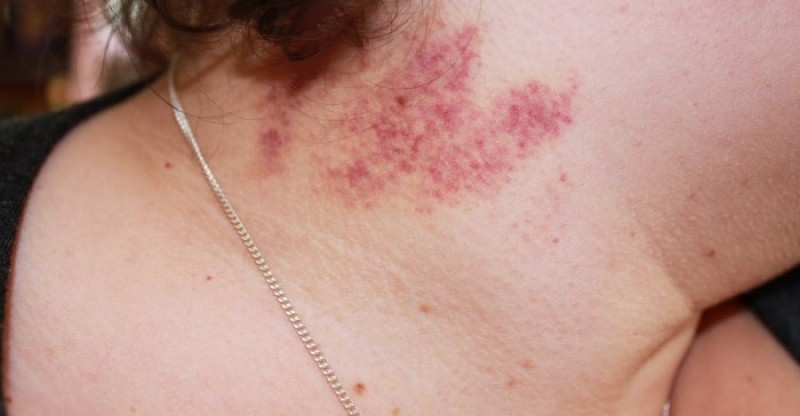 Best Remedies to Get Rid of An Embarrassing Hickeys!