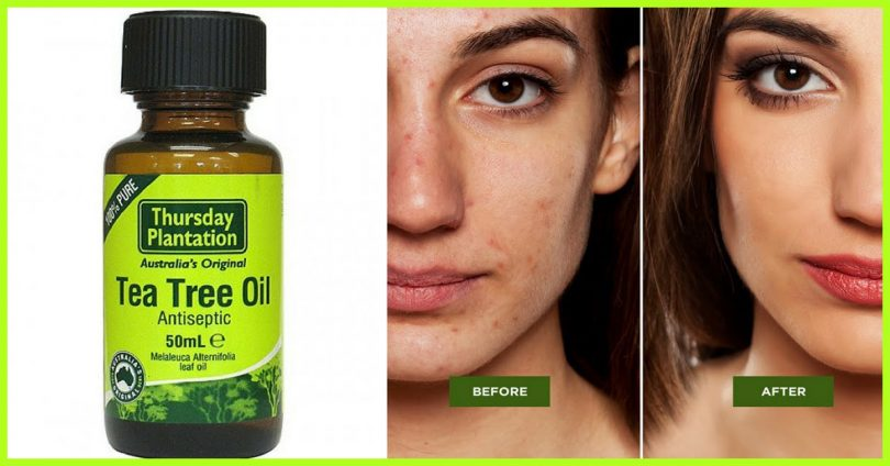 How to Use Tea Tree Oil for Acne Treatment Today