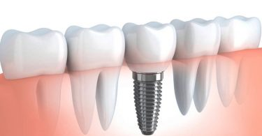 What Are the Signs of Dental Implant Failure