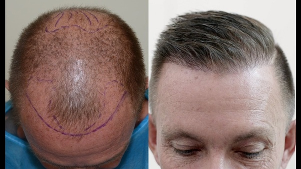 Hair transplant methods: a brief history