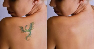 5 Signs That Tell You That it's Time to Get a Tattoo Removed